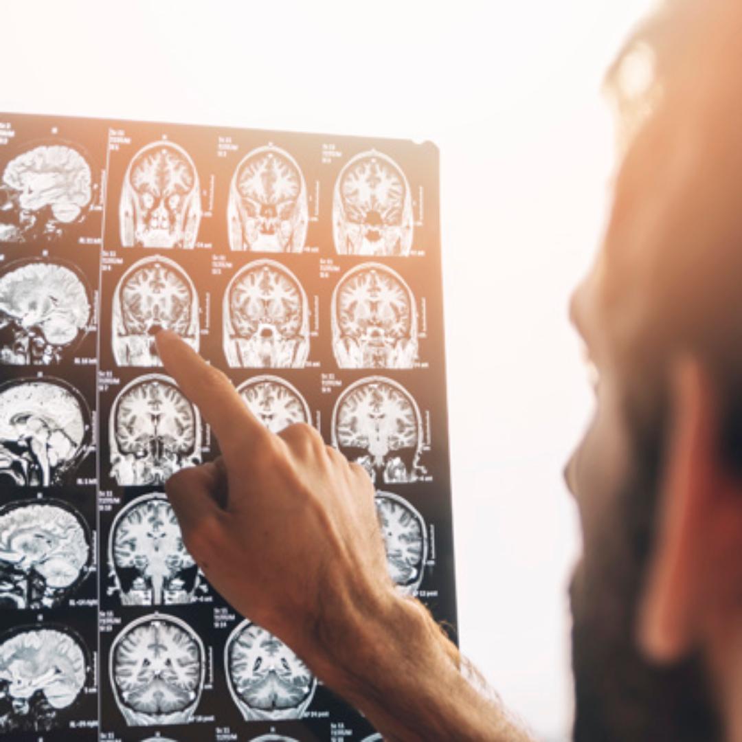 La importancia de capitalizar el fenómeno de la neuroplasticidad autodirigida